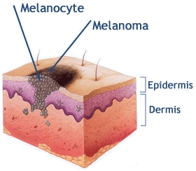 basal cell carcinoma define #10